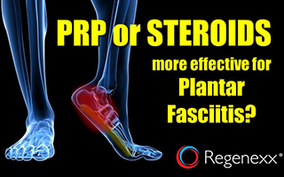 PRP vs Steroids for Plantar Fasciitis